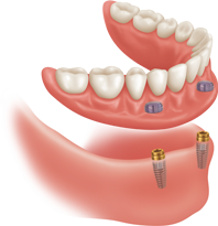 Implant Attachment Illustration