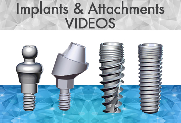 Implants & attachments Video