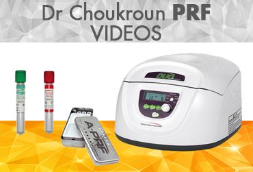 Choukrun PRF Video