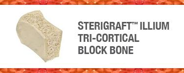 SteriGraft™ Illium Tri-Cortical Block Bone
