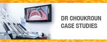 Dr Choukroun Case Studies