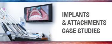 Implants & Attachments Case Studies